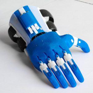 Impression 3D - Prothèse E-nable